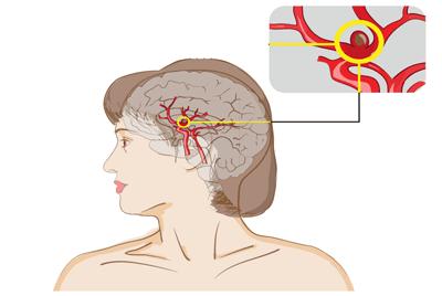 anevrizma-golovnogo-mozg