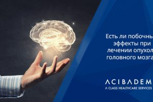 На 10 вопросов об опухоли головного мозга отвечает профессор клиники ACIBADEM