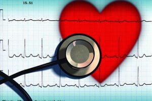 Криоабляция-метод лечения при нарушении сердечного ритма