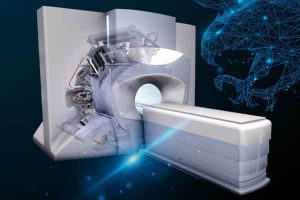 Опухоль под точным прицелом или «умный» метод лучевой терапии